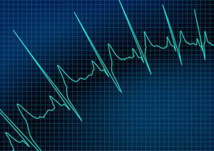 Electrocardiogram Machines